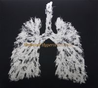 Icebend - Hyperventilation (2008)